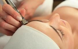 Tratamiento Facial Microdermoabrasión con puntas de diamante (1h 30m)