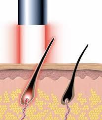 como funciona el láser de diodo